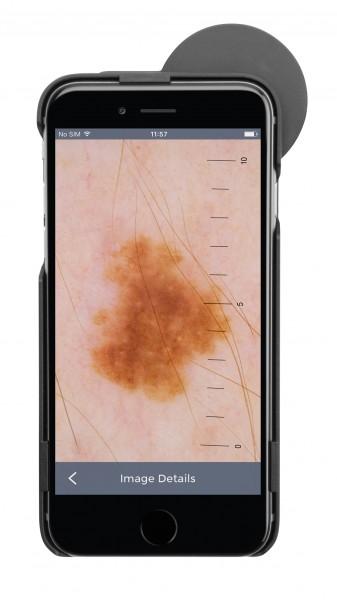 Dermatoskop HEINE® iC1 Set/6 für iPhone 6/6s LED