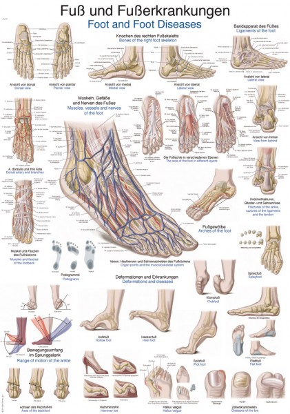 Lehrtafel Fuß und Fußerkrankungen