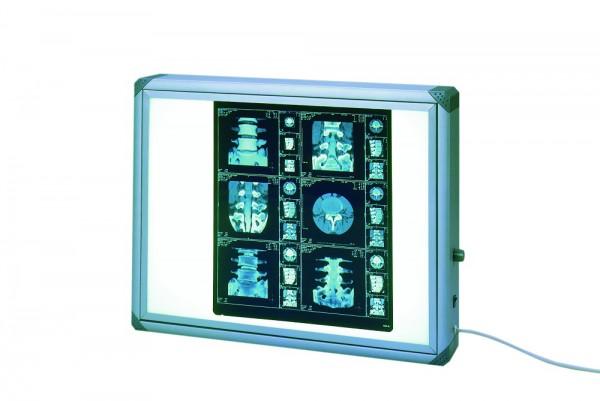 Röntgenfilmbetrachter Mediskop® Typ 560 HF mit stufenloser Helligkeitsregulierung B x T x H: 635 x 100 x 510 mm graue Ecken.