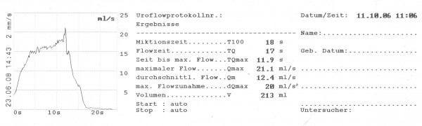 Thermoregistrierpapier für Uroflow-Recorder URO-2050